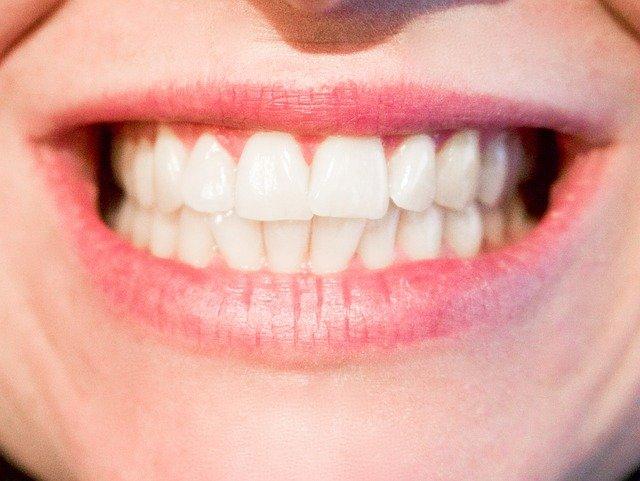 Zubní implantáty Liberec